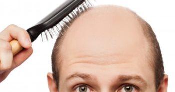 טופיק – פתרון עיבוי לסיבי שיער