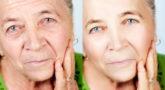 ניתוחי פנים – הופכים אנשים למאושרים
