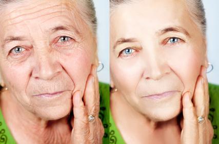 ניתוחי פנים