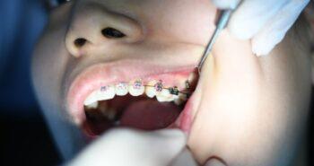 מברשת שיניים לגשר