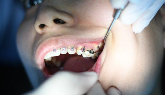 גשר לשיניים